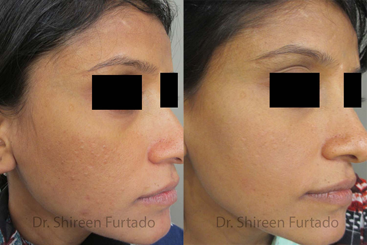 Dermatology Clinic in Bangalore | Dermatologists in